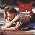 Paracoccidioidomicosisproctitissarcomucosis / Viscera Infest - Split CD