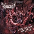 Vulvectomy - Post Abortion Slut Fuck